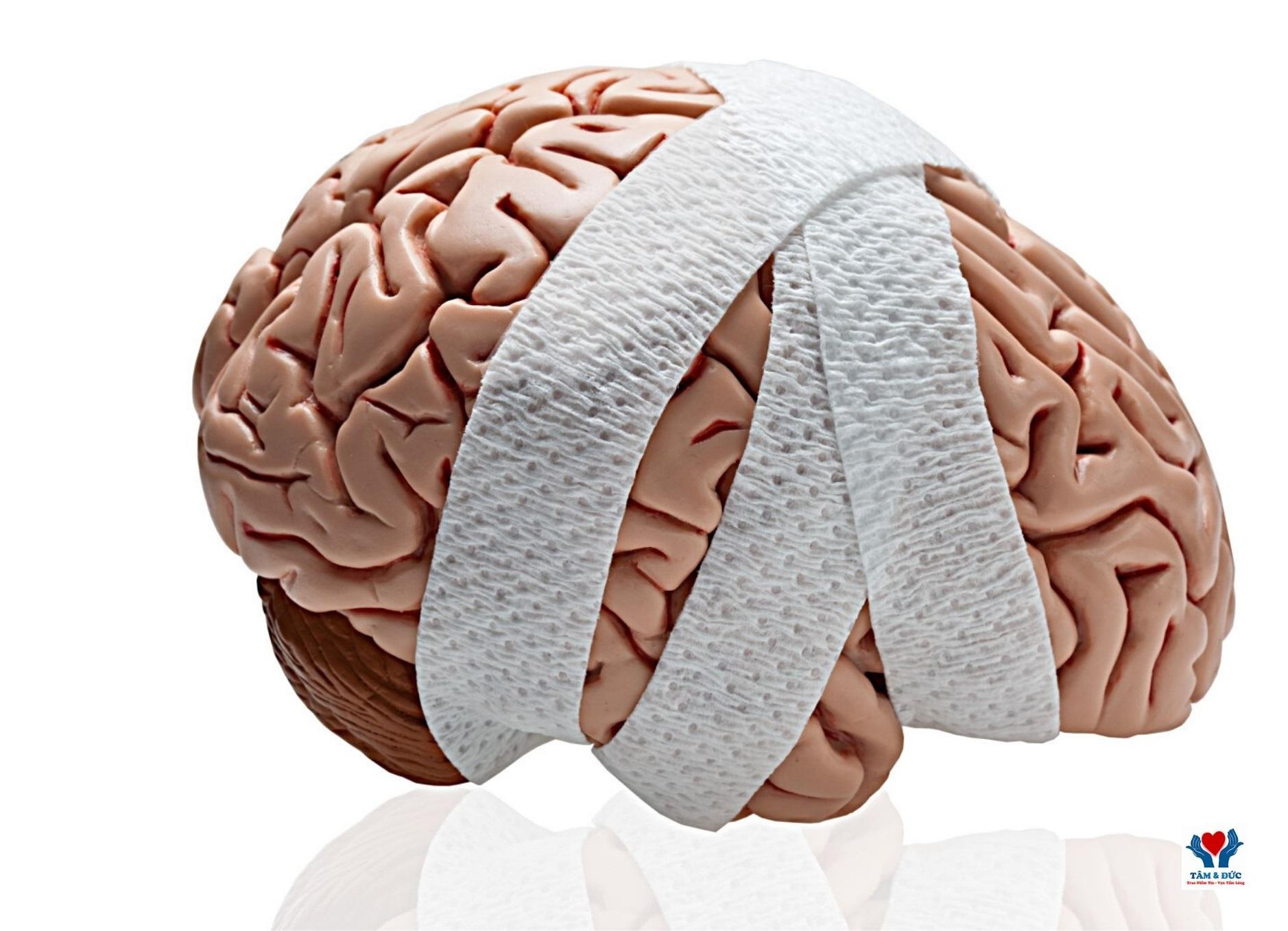chăm sóc bệnh nhân chấn thương sọ não sau mổ