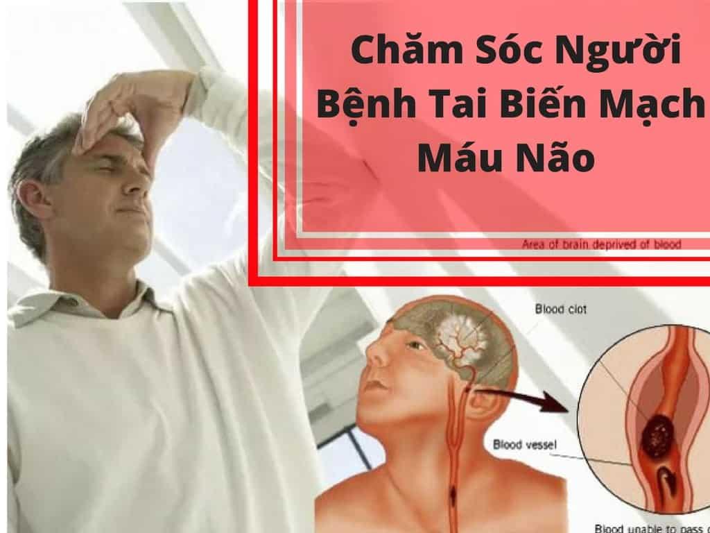 Chăm Sóc Người Bệnh Tai Biến Mạch Máu Não