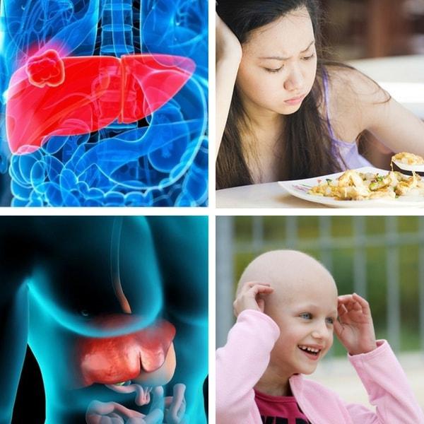 Bệnh U Gan Có Lây Không - Kiến Thức Chăm Sóc Bệnh Nhân Ung Thư Gan