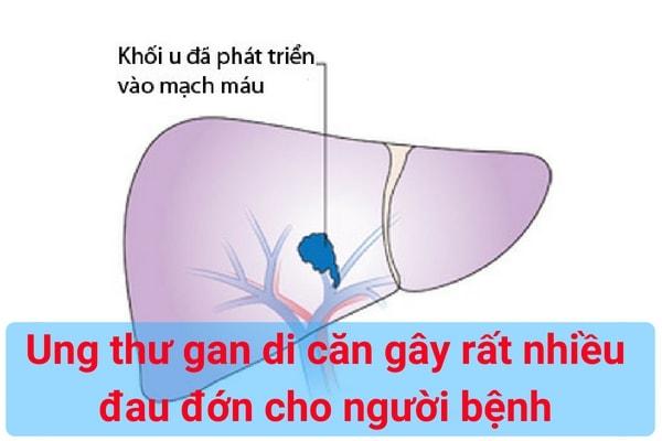 ung-thu-gan-di-can-gay-rat-nhieu-dau-don-cho-nguoi-benh