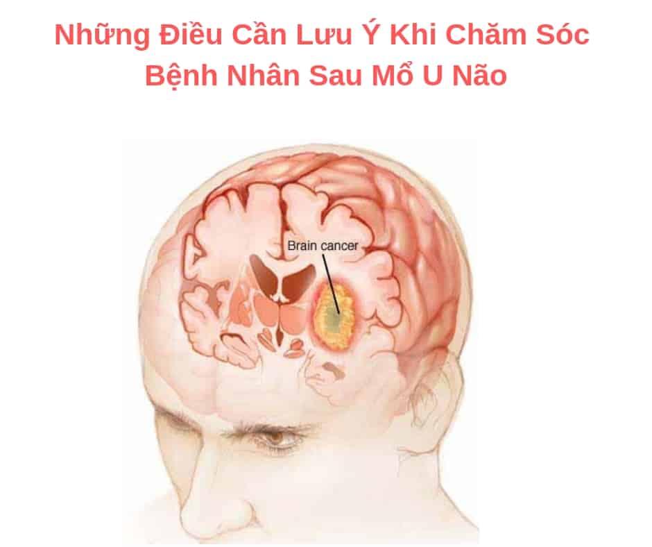 Những Điều Cần Lưu Ý Khi Chăm Sóc Bệnh Nhân Sau Mổ U Não