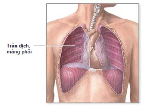 Chăm sóc tràn khí màng phổi