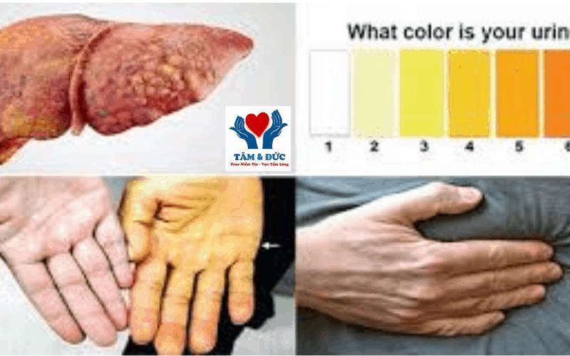 Biểu hiện ung thư gan giai đoạn cuối như thế nào?