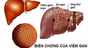 ung thư gan giai đoạn cuối có biểu hiện