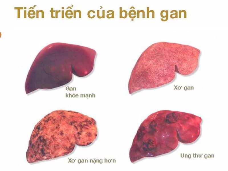 ung thư gan giai đoạn cuối có chữa được không