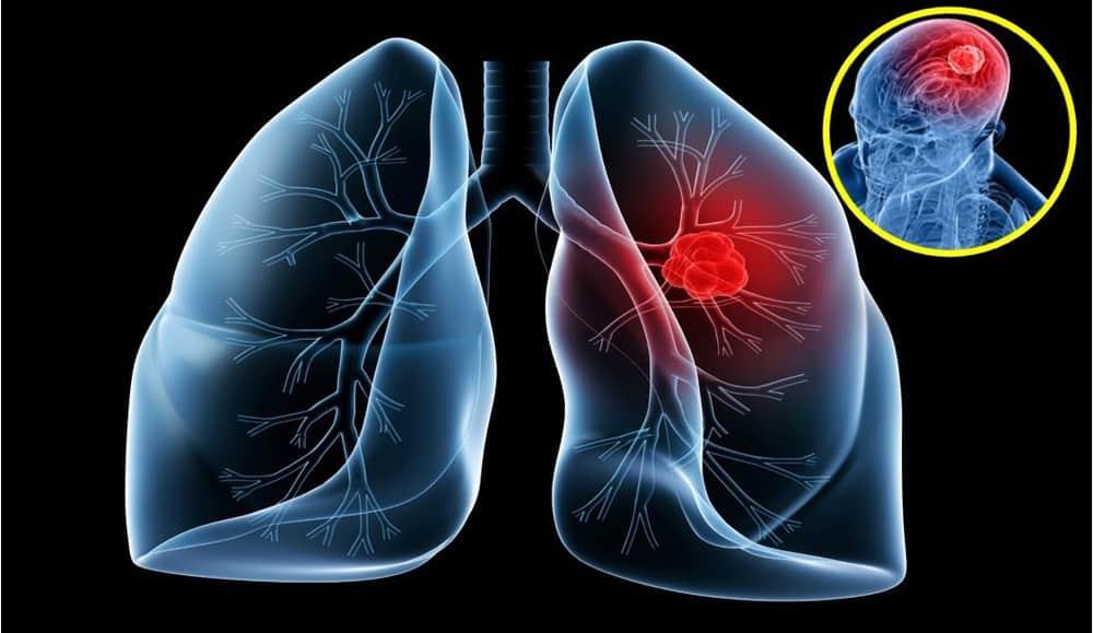 Triệu chứng và cách điều trị ung thư phổi | Dịch vụ chăm sóc người già - bệnh nhân