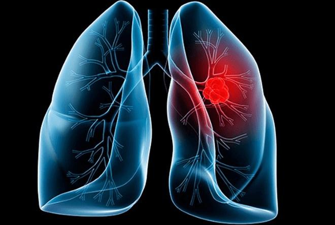 Cách dùng lá đu đủ chữa ung thư phổi mang lại hiệu quả bất ngờ