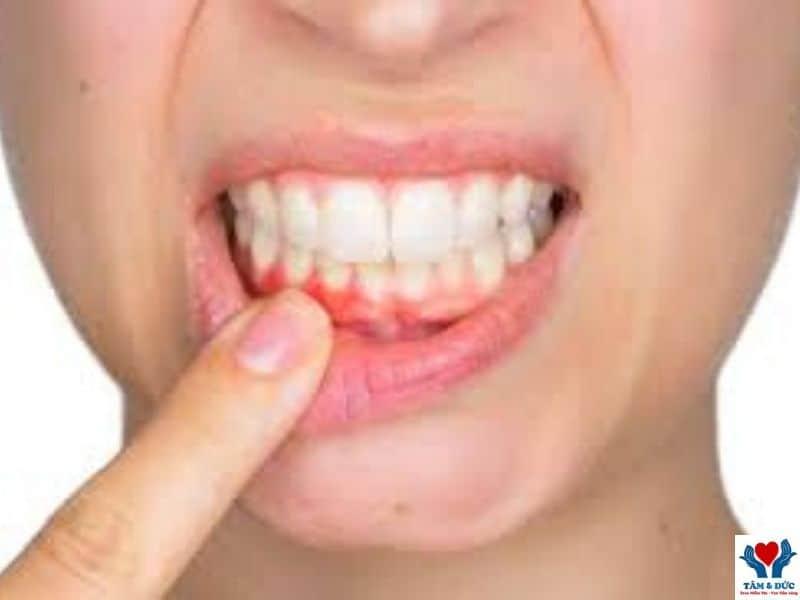 Điều Trị Chảy Máu Chân Răng Làm Thế Nào Là Tốt Nhất