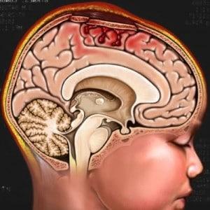 Cách chăm sóc người bệnh sau phẫu thuật u não một cách khoa học