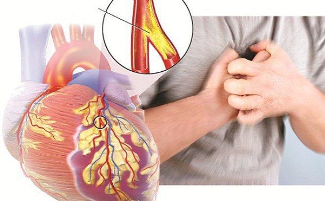 Chăm sóc người bệnh | Những dấu hiệu chứng tỏ bạn bị suy tim